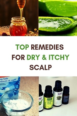 remedies for dry and itchy scalp inclusing aloe vera, baking soda, raw honey and essential oils