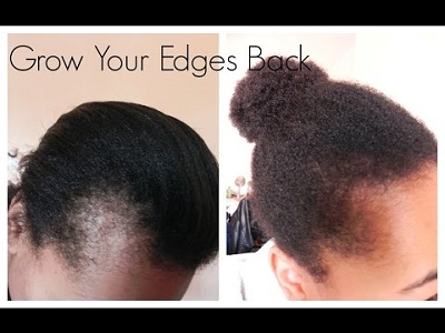 castor oil before and after